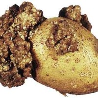 Рак картофеля_4