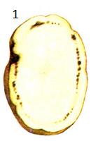 Увядание картофеля трахеобактериозное, кольцевая гниль клубней